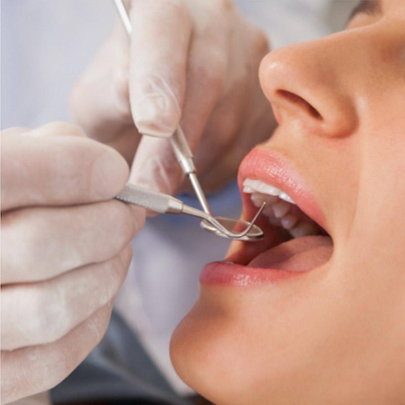 conservativa-Studio dentistico Riccardo Della Ciana | Civitanova Marche