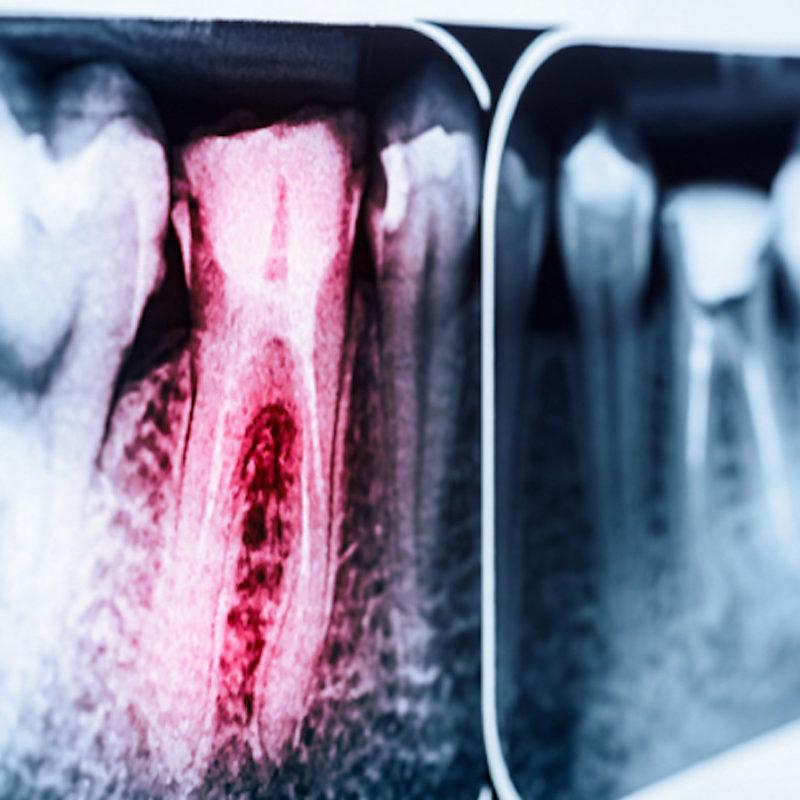 endodonzia-Studio dentistico Riccardo Della Ciana | Civitanova Marche