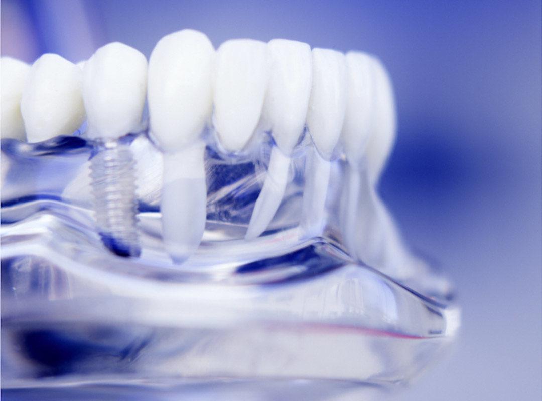 implantologia-Studio dentistico Riccardo Della Ciana | Civitanova Marche