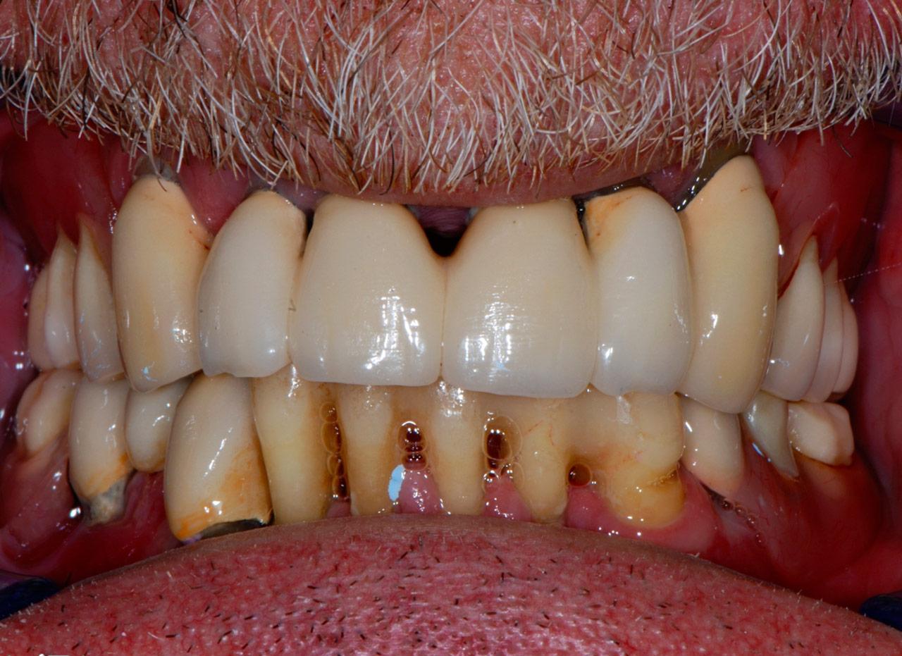implantologia dentale-civitanova marche