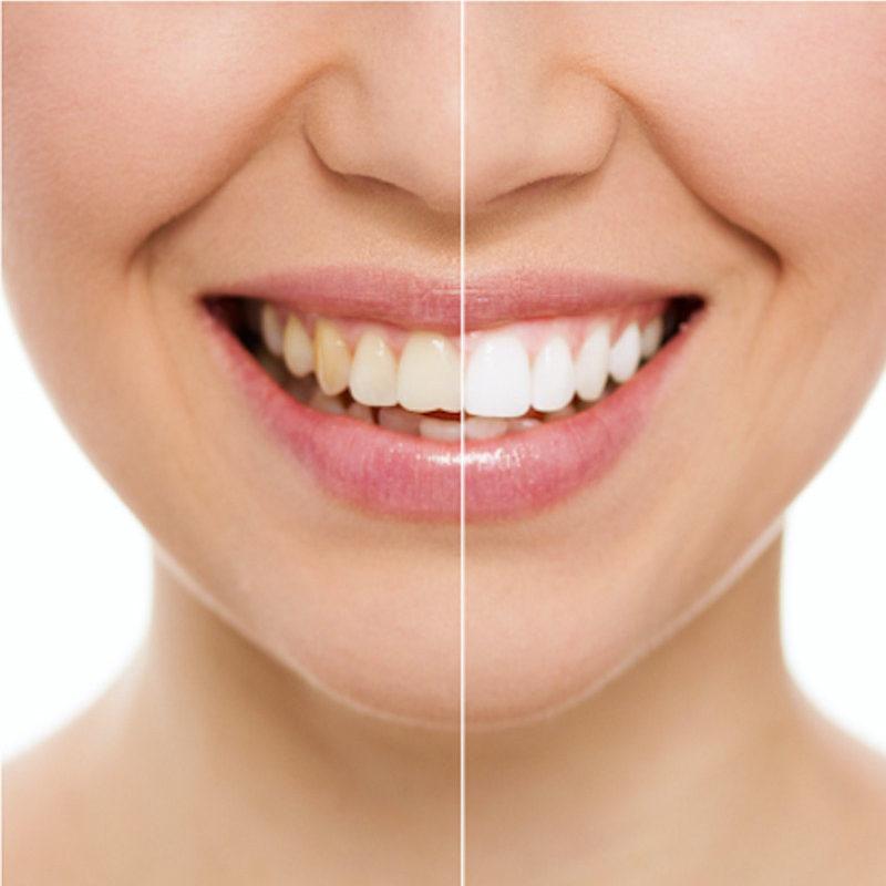sbiancamento-Studio dentistico Riccardo Della Ciana | Civitanova Marche
